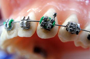 dentisti Rapallo, ortodonzia