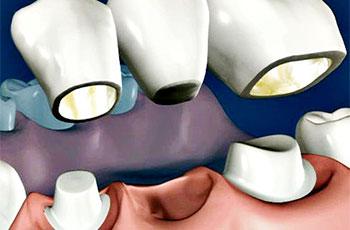 dentisti Rapallo, protesi