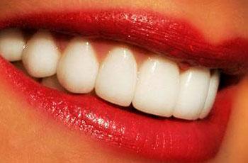 dentisti Rapallo, restaurativa
