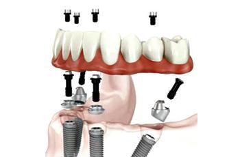 dentisti Rapallo, chirurgia orale